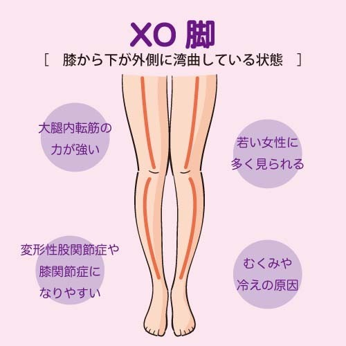 「XO脚」の画像検索結果